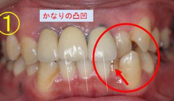 case_02_1