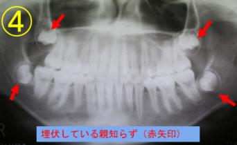 case_04_4
