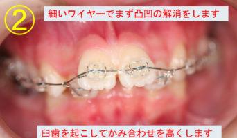 case_06_2