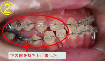 case_09_2