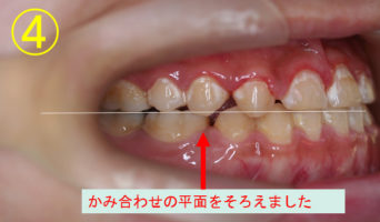 case_09_4