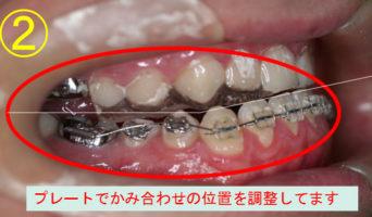 case_10_2