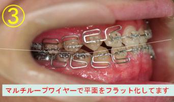 case_10_3